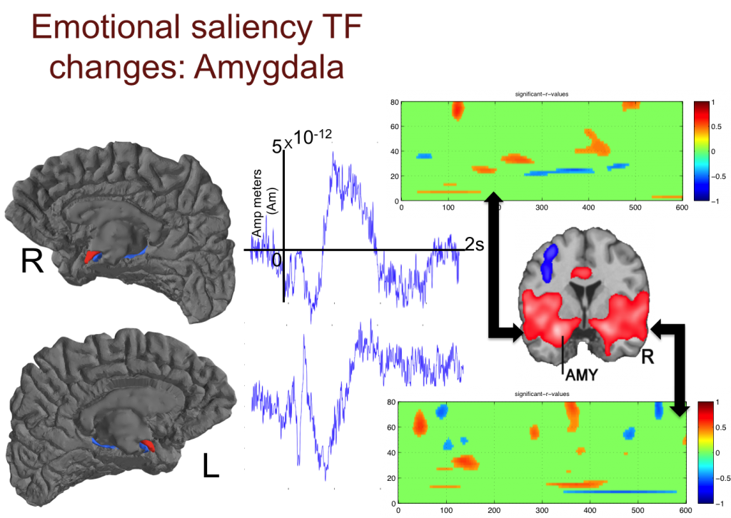 Emotional saliency TF changes: Amygdala